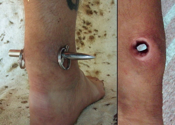 Achilles tendon piercing